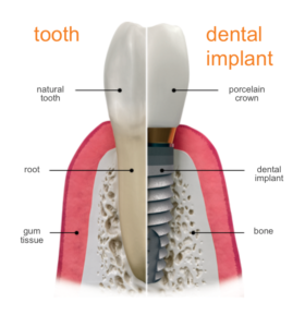 Dental implants are natural-looking replacement teeth that are fixed in the jaw.
