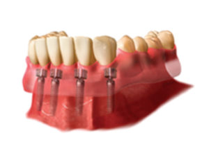 Full arch implants are an option for patients who are missing most or all of their teeth and are seeking to reconstruct their entire mouth for restored function and appearance.