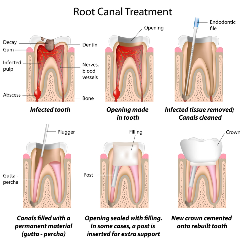 Dr Dulac works with some great Endodontists (Root canal specialists) in the area and can refer you to one if needed.
